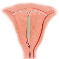 M�hen bel�li fogamz�sg�tl� eszk�z�k (IUD) Term�kaj�nl�